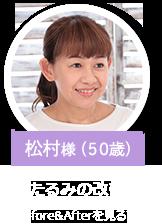松村様(50歳)