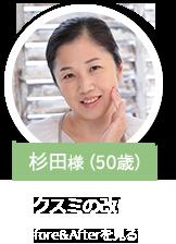 杉田様(50歳)